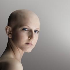 bald lady