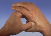 alupresura thumb